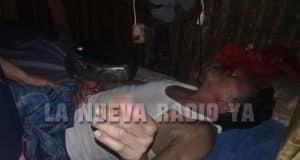 Oscar José Hernández se prendió fuego en estado de ebriedad