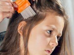 Los pijos afectan especialmente a los niños