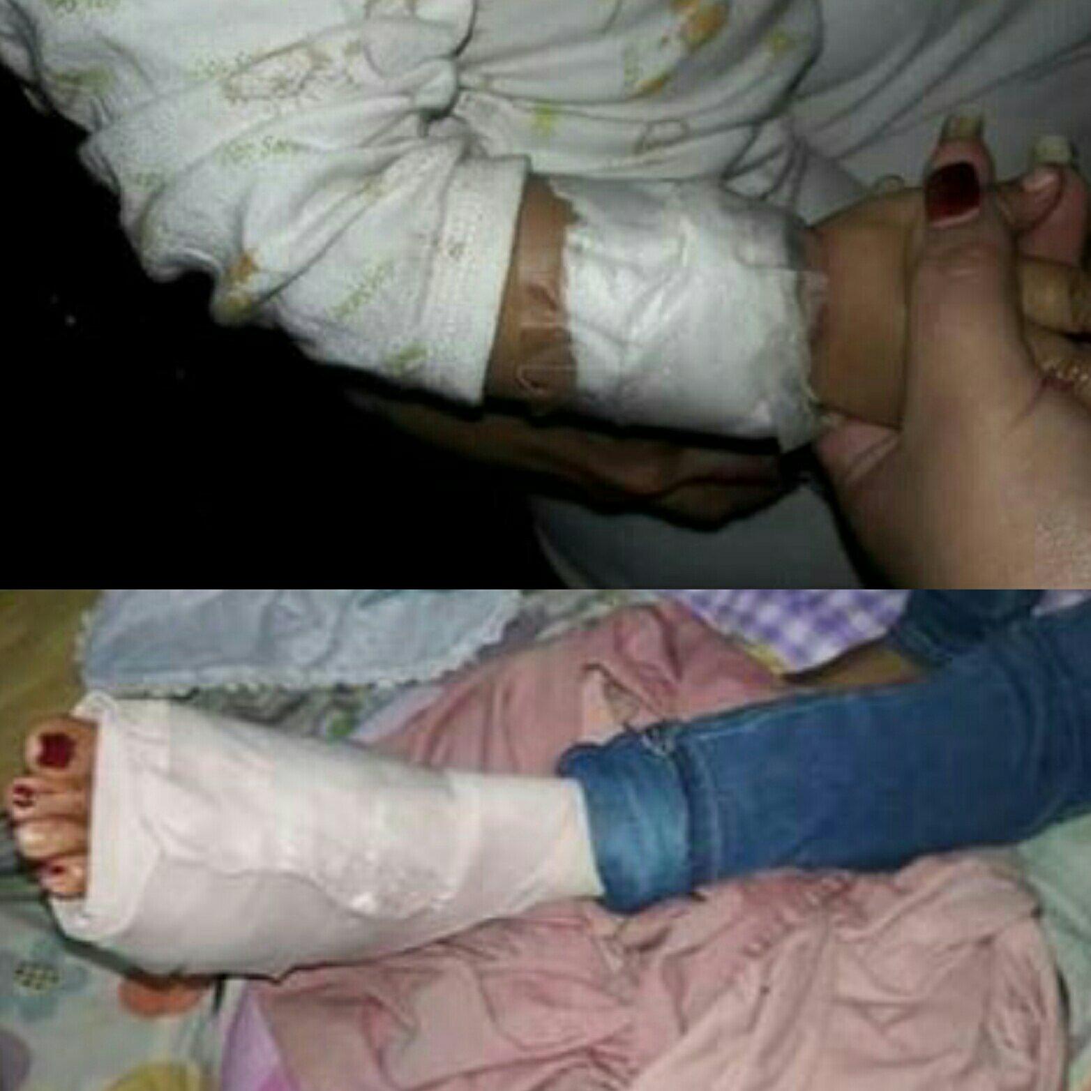 Rebeca Diaz y su pequeña hija fueron atacadas por el can