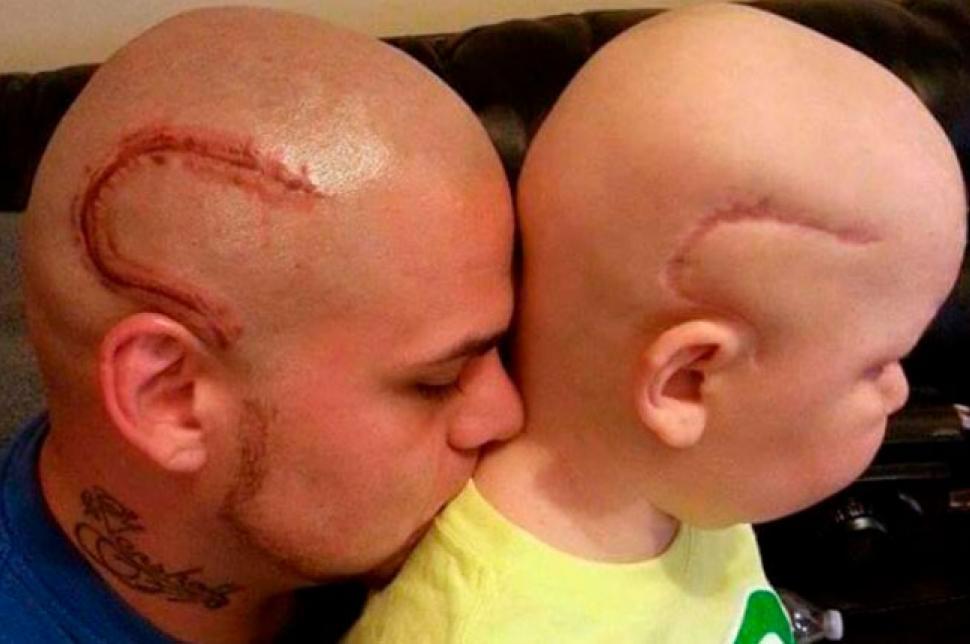 Falleció el niño cuyo padre se tatuó la misma cicatriz en su cabeza para darle ánimos
