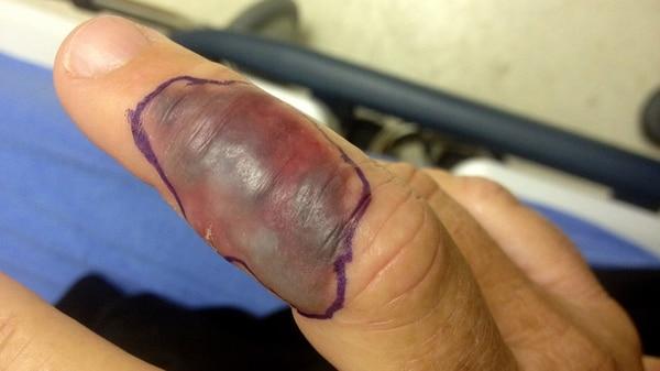 Infección en un dedo por la bacteria Vibrio vulnificus
