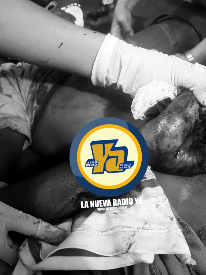 Osman Sevilla, de 35 años de edad, recibió un machetazo
