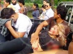 Leyla Quiñones Núñez, de 20 años, sufrió un lamentable accidente vial