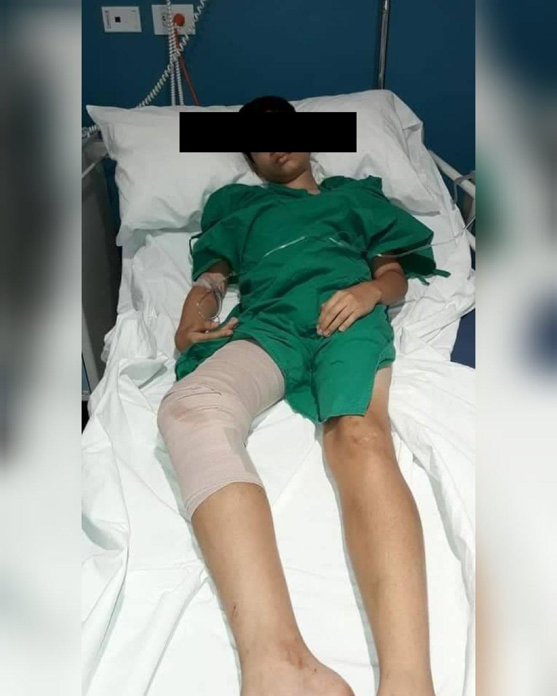 Niño baleado en Batahola Norte
