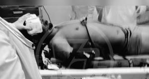 José Andrés sufrió un trauma cráneo encefálico severo,