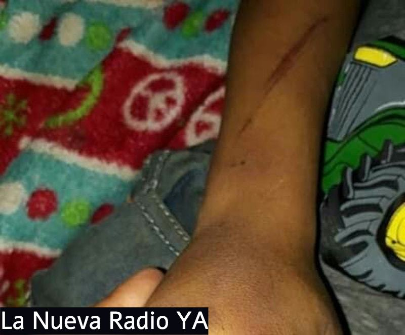 El bebé fue agredido por su papá quien estaba bajo los efectos del alcohol