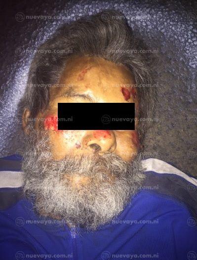 Desconocido que murió atropellado en Tipitapa