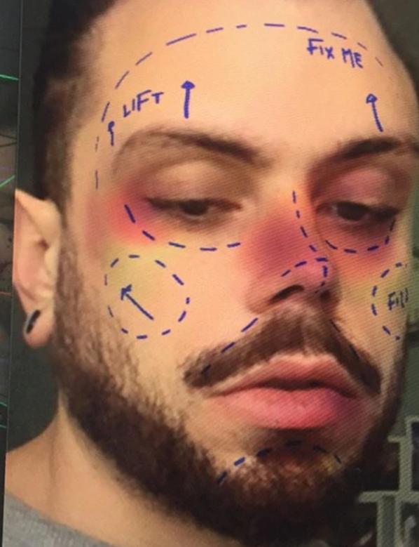 Anulan filtro de Instagram que simula cirugía estética