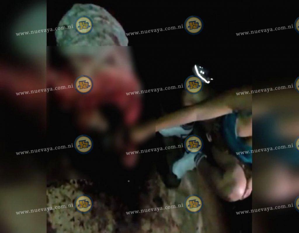 Ana Rosa García Parrales murió a manos de su perro pitbull en Carazo, Nicaragua