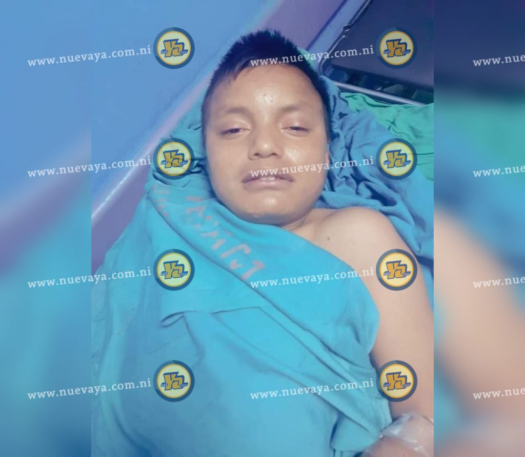 Marvin, tiene 14 años de edad, y se encuentra en el Hospital de Matagalpa