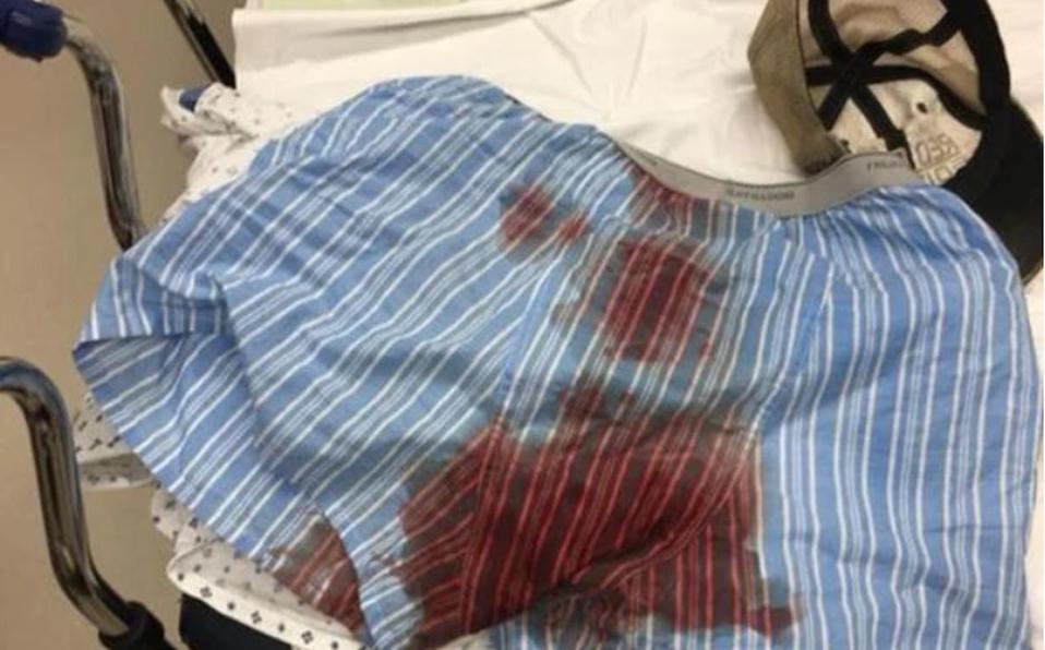 Investigan a médicos ticos por grabar a joven con varilla ensartada en los testículos