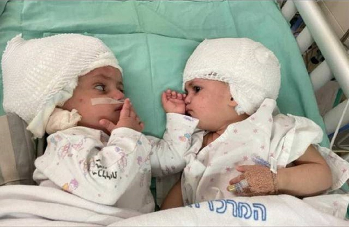Médicos logran separar a gemelas unidas por la cabeza tras 12 horas de cirugía. Foto cortesía de American Friends of Soroka Medical Center